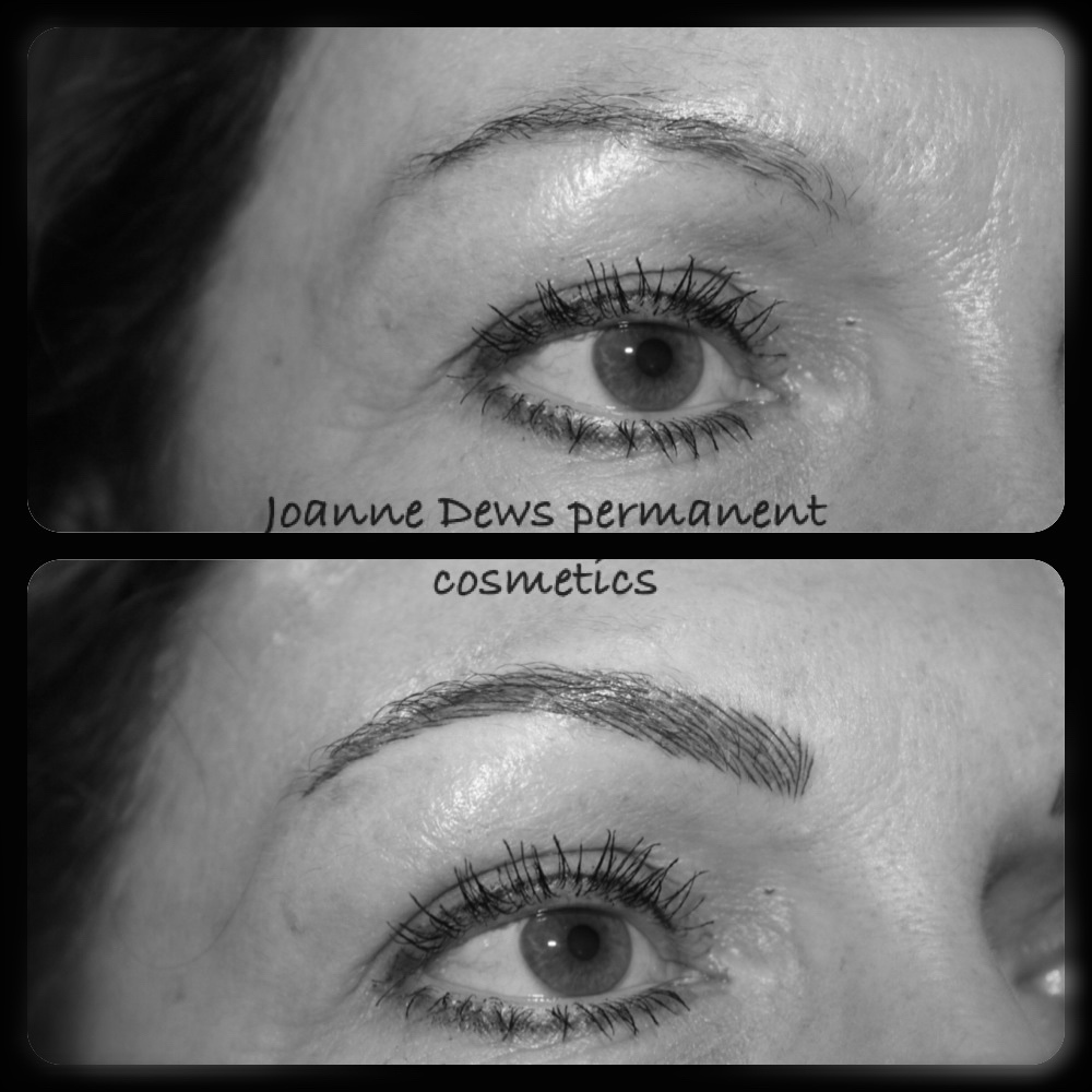 Joanne Dews Semi Permanent Treatment Before and After