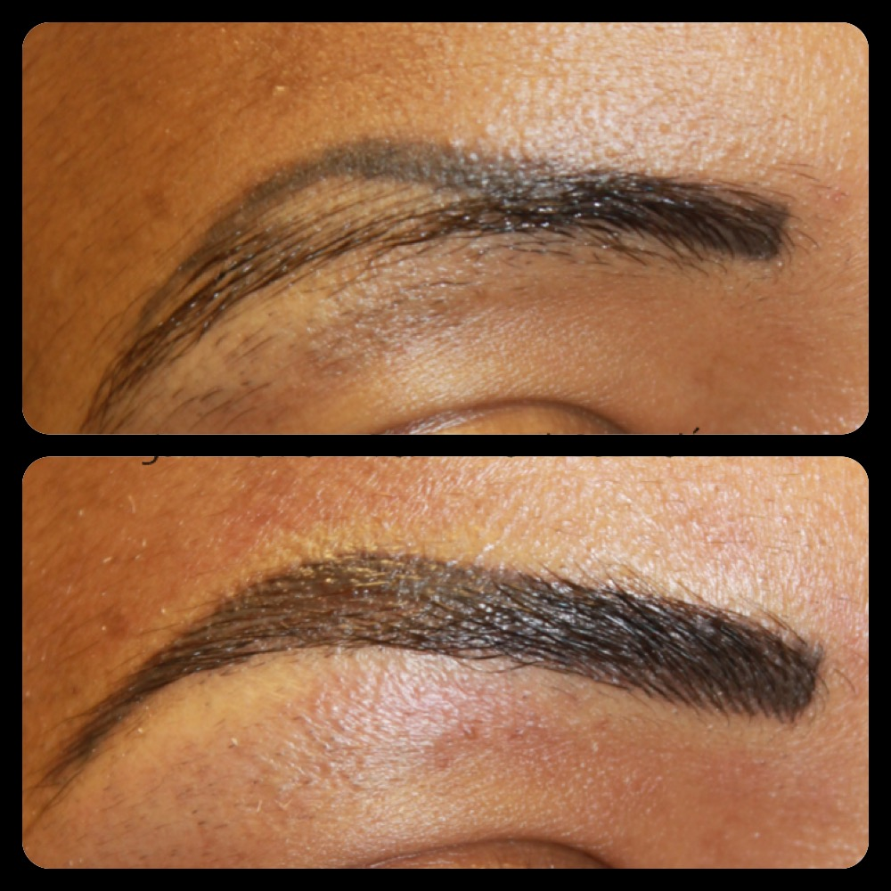 Laser Tattoo Removal of Semi permanent Makeup and correctional work ...